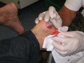 Behandling af en blodvable