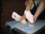 Klargøring af fødder