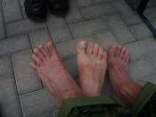 Ømme fødder